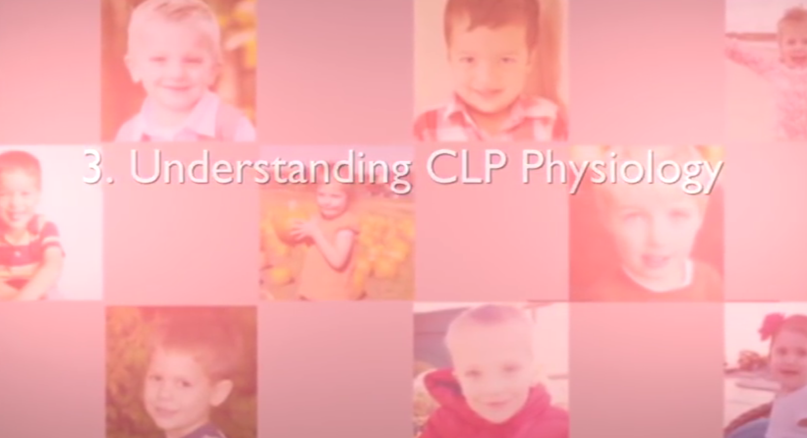 Chapter 3 – Understanding Cleft Lip/Palate Physiology