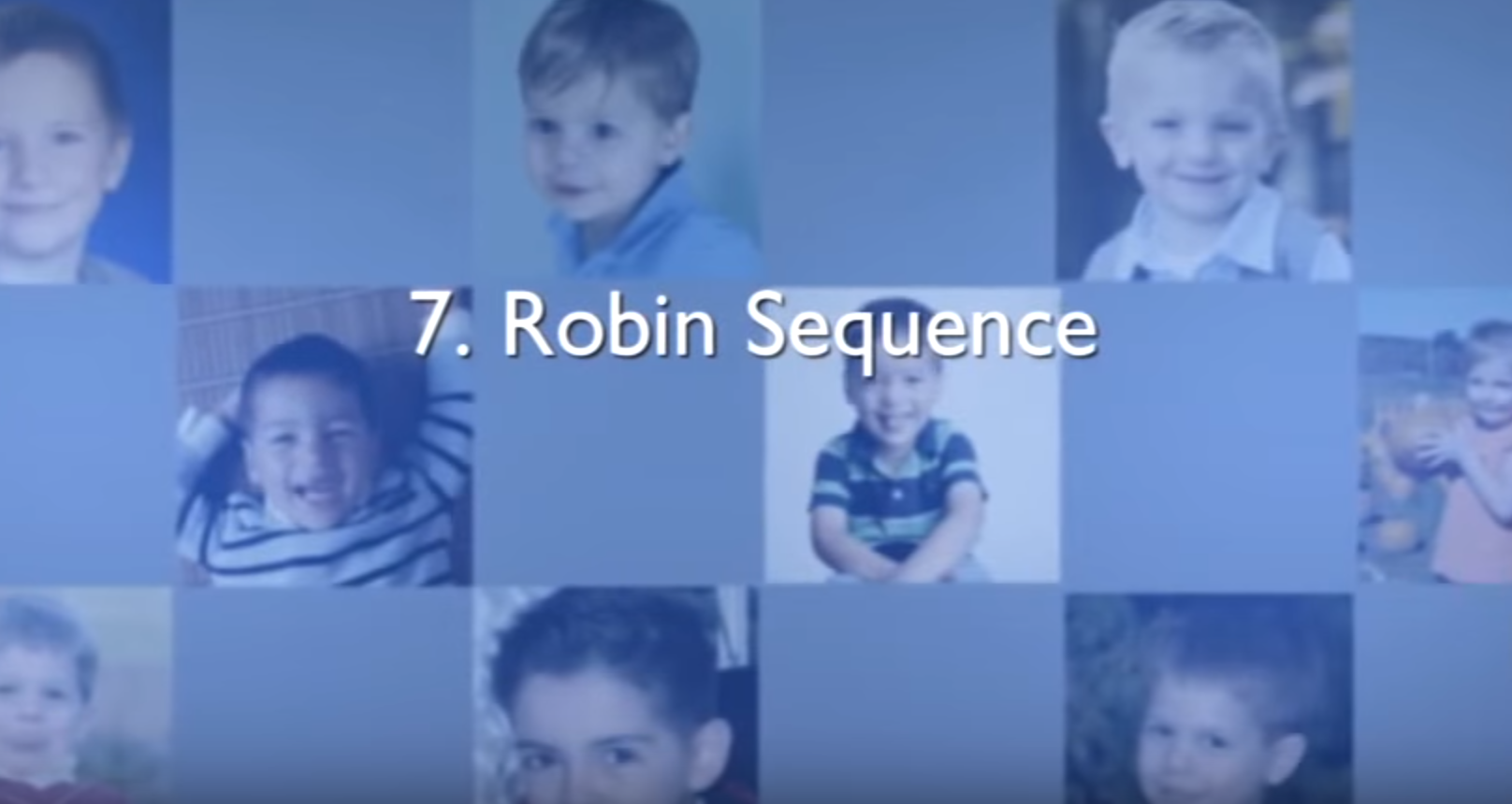 Chapter 7 – Robin Sequence